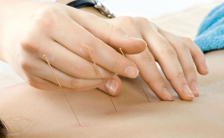 【鍼灸師が教える】鍼灸と自宅でできる肩こり改善法
