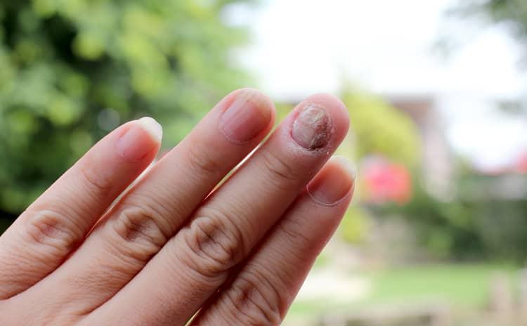 爪に縦線が…きれいな爪に戻るための5つのポイントとは?